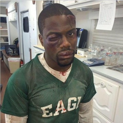 American actor Kevin Hart robbed and beaten in #SouthAfrica @KevinHart4real